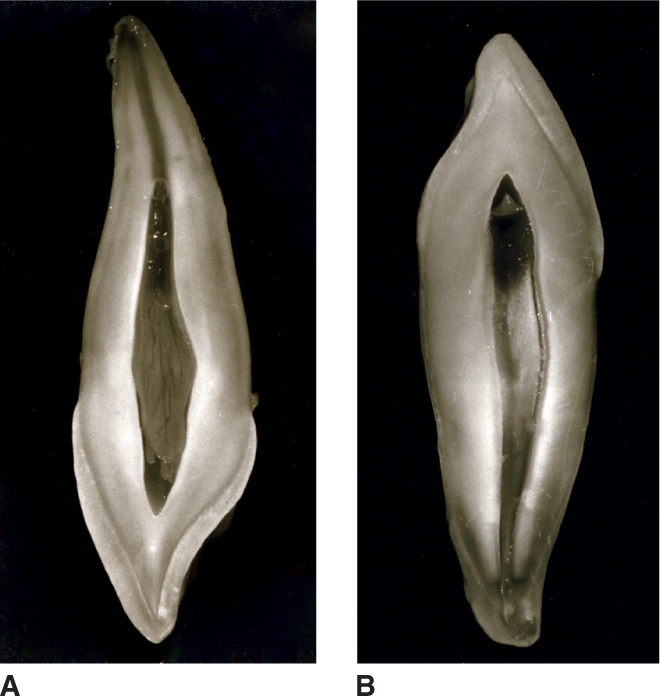 Image A shows Maxillary canine, with mesial side removed. Image B shows Mandibular canine, with mesial side removed.