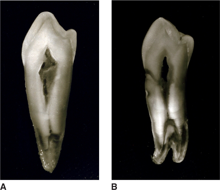 Images A and B show mandibular first premolars sectioned faciolingually.