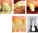 Internal pulp cavity morphology related to endodontic and restorative therapy