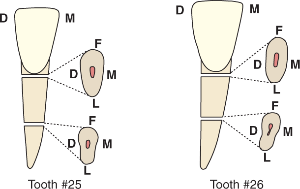 An illustration shows tooth #25 and tooth #26, the mandibular central and lateral incisors and their cross section.