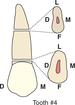 An illustration shows tooth #4, the maxillary second premolar and its cross section.