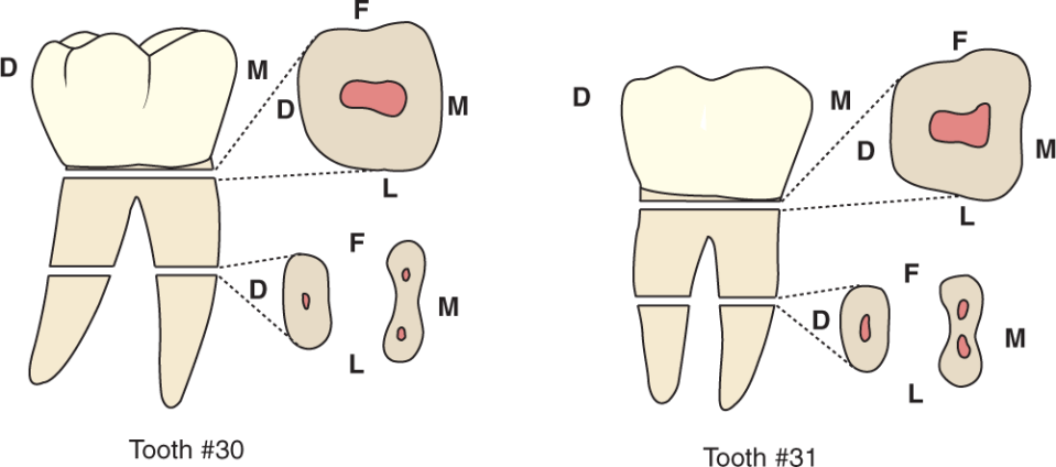 An illustration shows tooth #30 and tooth #31, the mandibular first and second molars and their cross section.
