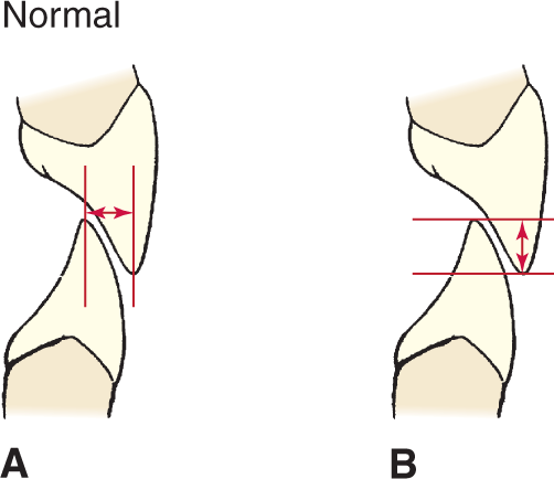 Illustrations A and B show the incisor relationship with a horizontal and vertical overlap.