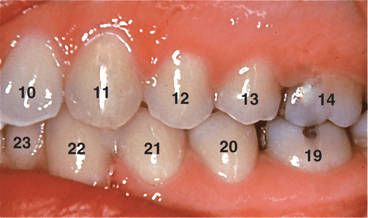 A photo shows the Ideal tooth alignment in Angle's class I occlusion.