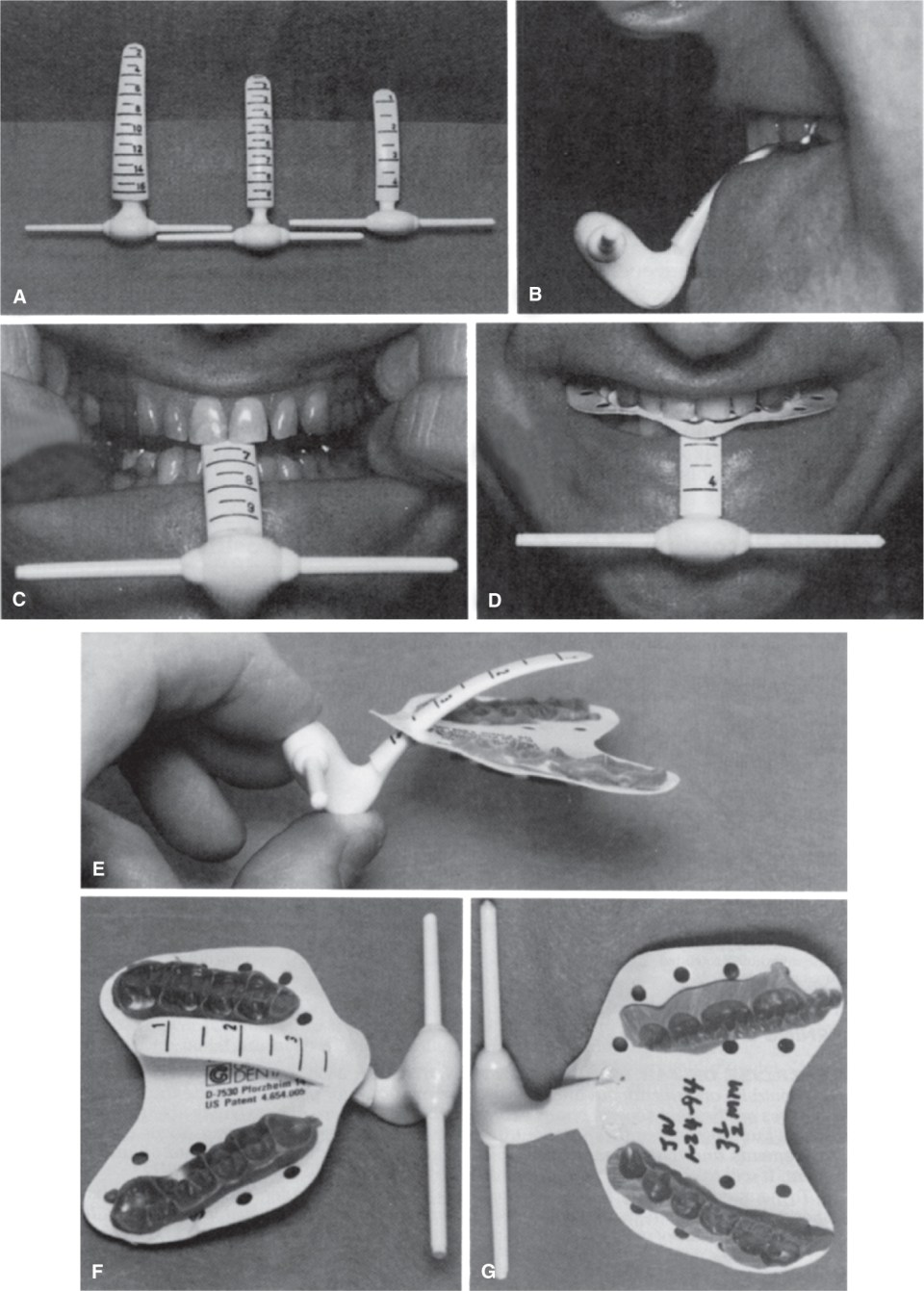 Images A, B, C, D, E, F, and G show the process of Obtaining centric relation jaw registrations.