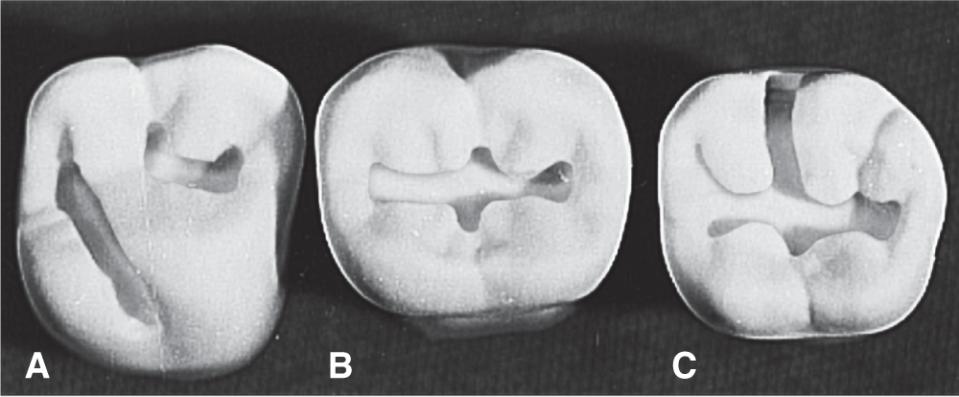 Photos A, B, and C show class I amalgam preparations with common outlines for many maxillary and mandibular molars.