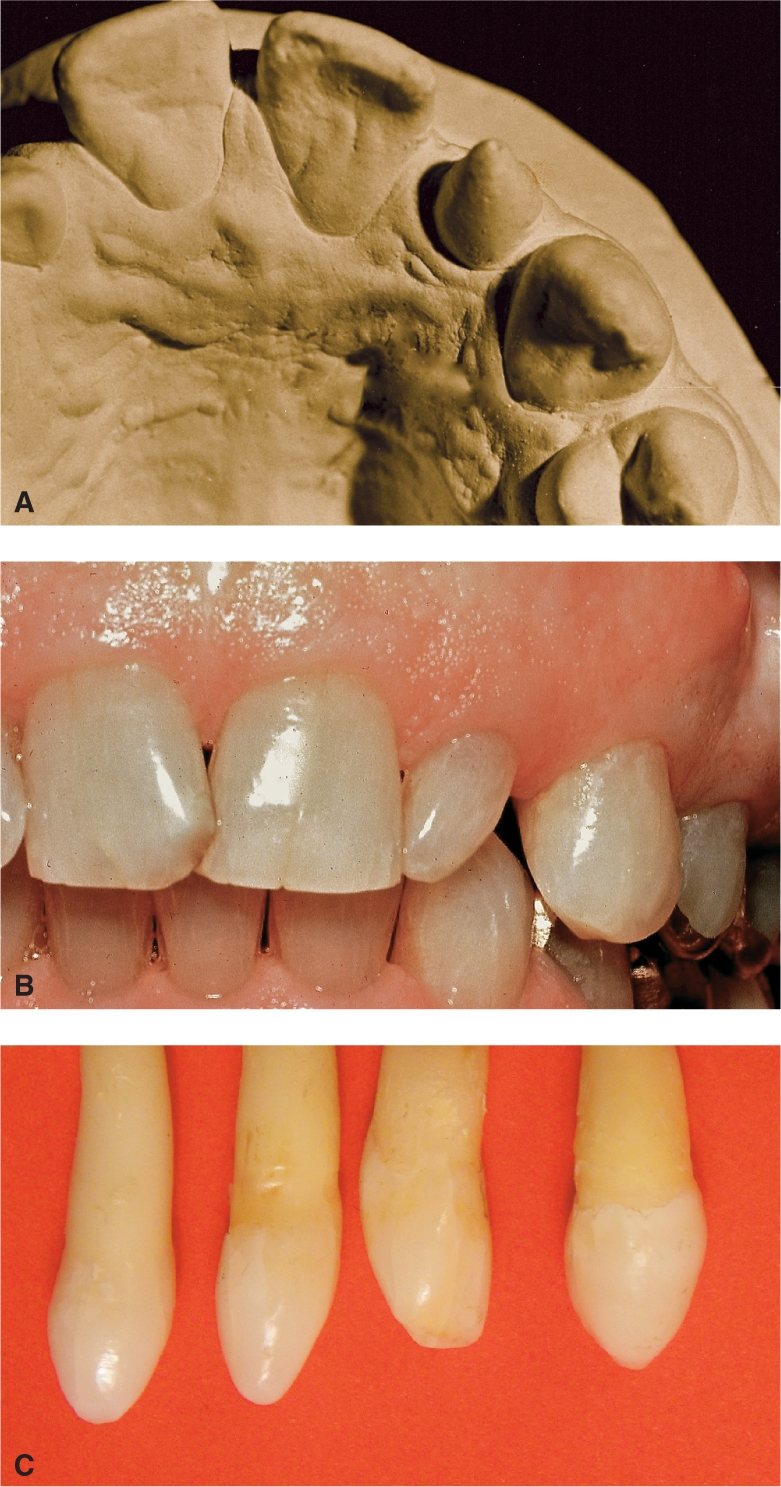 Photos A, B, and C show peg-shaped maxillary lateral incisors.