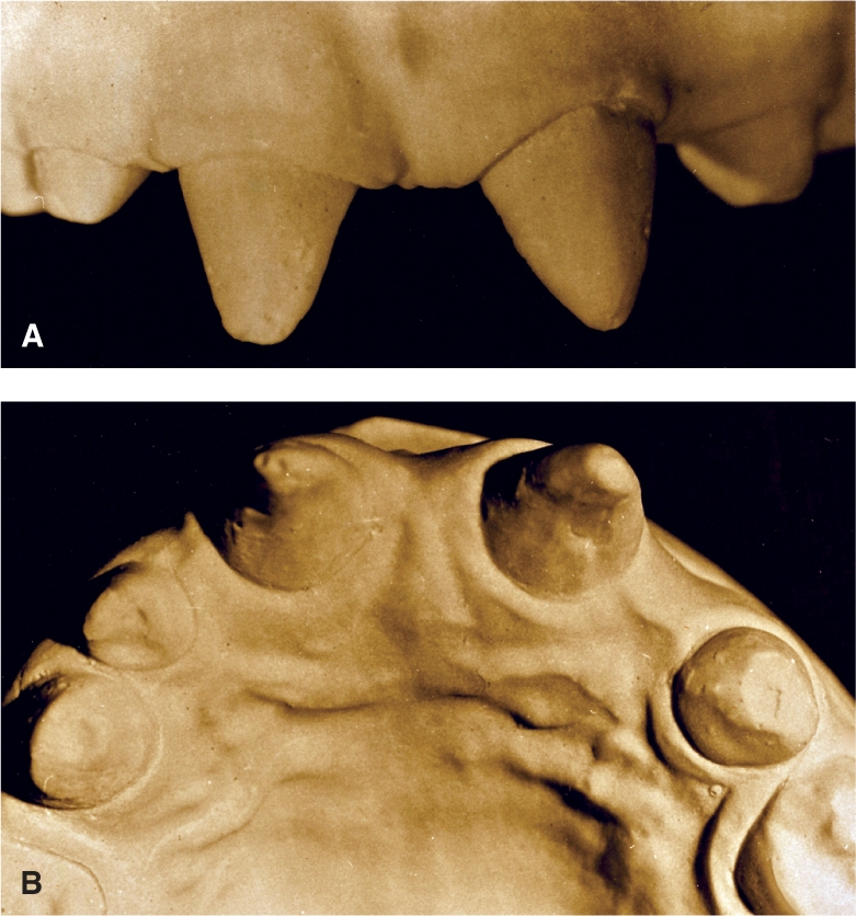 Photo A shows the facial view. Photo B shows the incisal view revealing both canines, one lateral incisor, and the two peg-shaped central incisors.