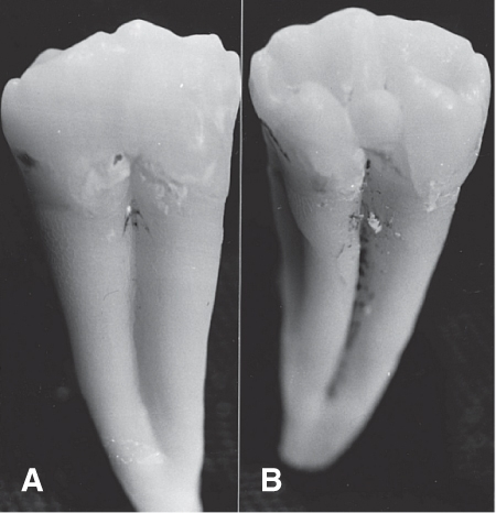 Photo A shows two teeth as fused together in buccal aspect and Photo B shows the lingual aspect. Some separation between the roots is visible. There are two pulp canals.