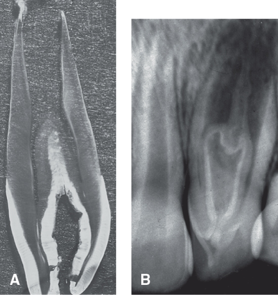 Photo A shows a faciolingual, very thin cross section of a maxillary lateral incisor with dens in dente. Photo B shows a radiograph of a dens in dente on a maxillary right central incisor.