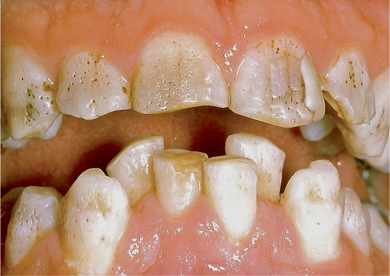 A photo shows teeth with yellow to brownish crown.