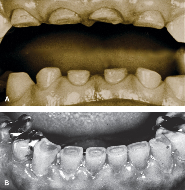 A photo shows attrition resulted from prolonged bruxism or grinding of the teeth.