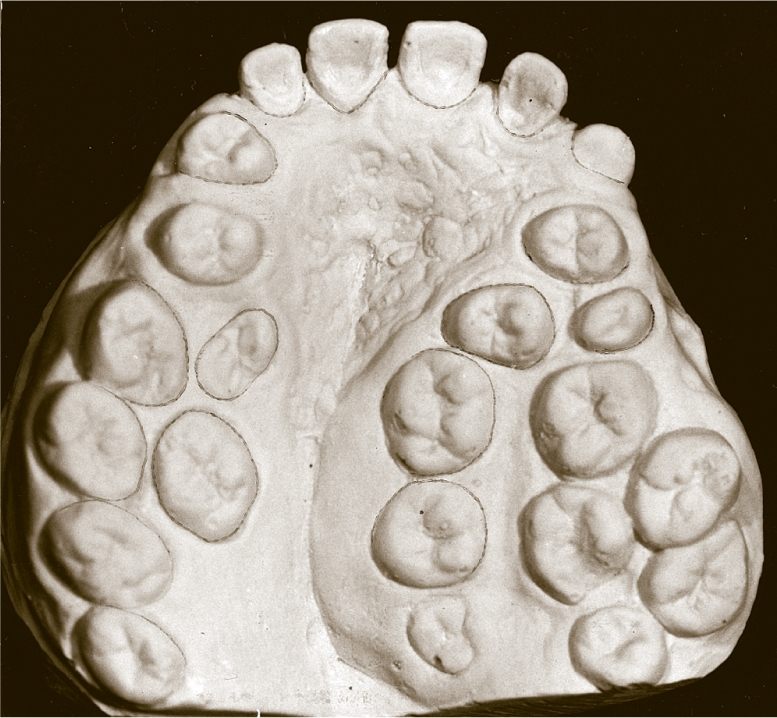 A photo shows the cast of very unusual permanent maxillary dentition with 24 teeth, including 13 molars.