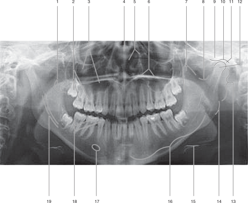 A radiograph shows the structure of the skull.