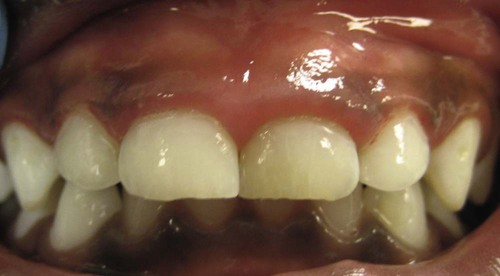 18 Gingival Disease In Childhood Pocket Dentistry