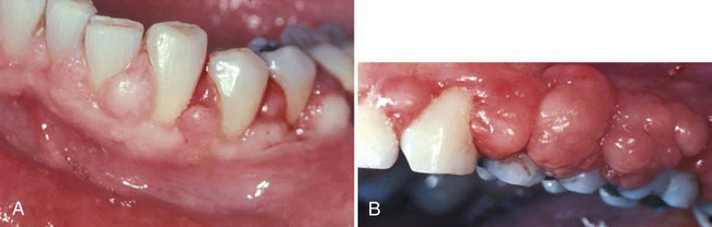 38 Periodontal Therapy In The Female Patient Pocket