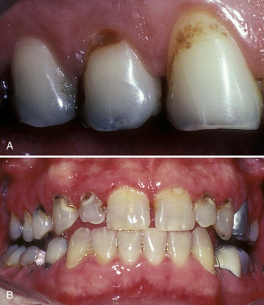 12 Plaque Biofilm And Disease Control For The Periodontal
