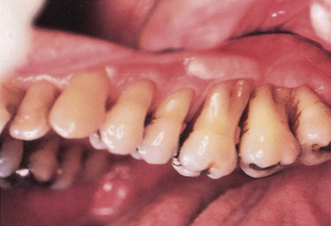 19 Nutritional Aspects Of Gingivitis And Periodontal