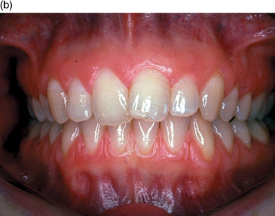 5 The Periodontium Tooth Deposits And Periodontal