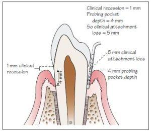 16: Periodontal History, Examination and Diagnosis   Pocket Dentistry