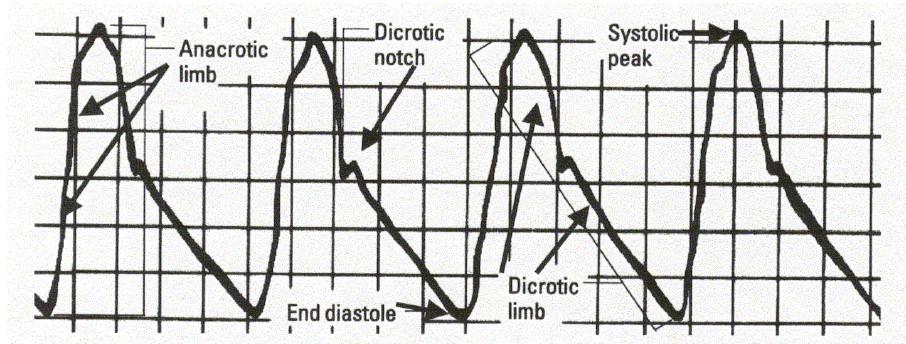 Basics of Hemodynamics - Pocket ICU