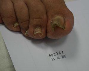 korekta wrastającego paznokcia - metoda arkady