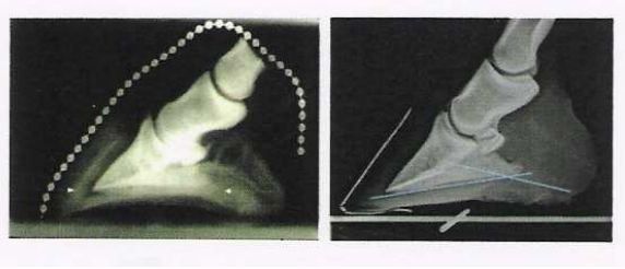 p3-para-vs-arche-interne