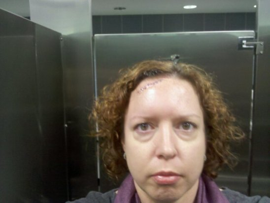 Honestly, none of this is cute. The pout, the bags under the eyes, the airport bathroom stall. Oh, or the stitches.