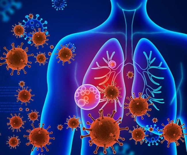 22 04 2020 Coronavirus Pneumonia 20213216
