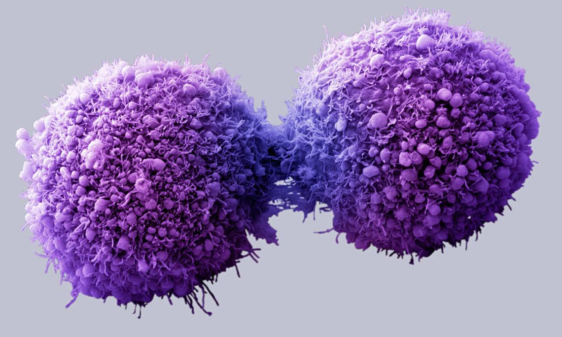 Нове відкриття дозволить краще зрозуміти причини розвитку раку