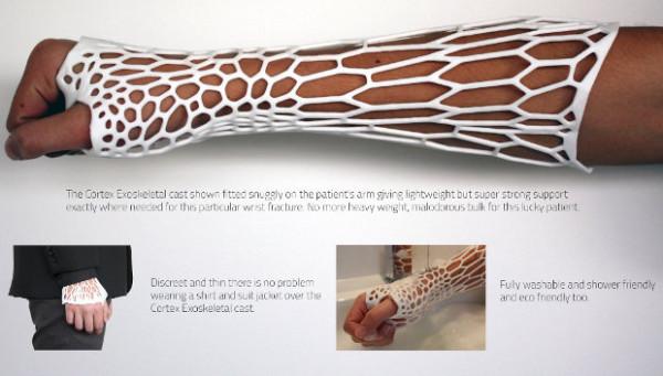 3D-printed-cast