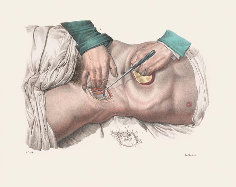 Disturbing Vintage Medical Illustrations Richard-Barnett 10