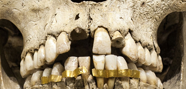 Grillz The History Behind Those Expensive Smiles