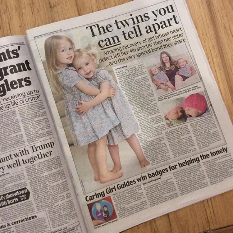 Picture of the Daily Mail with an article abut non identical twins