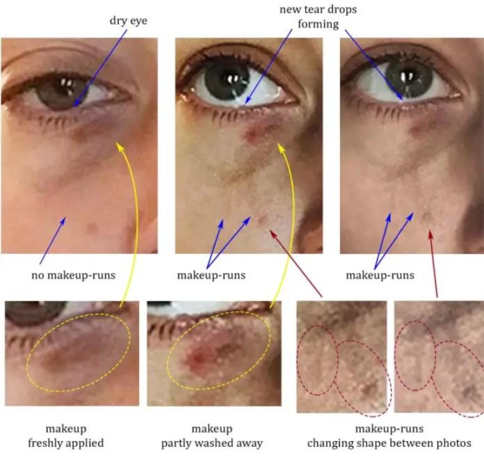 Eye injury blackeye makeup running