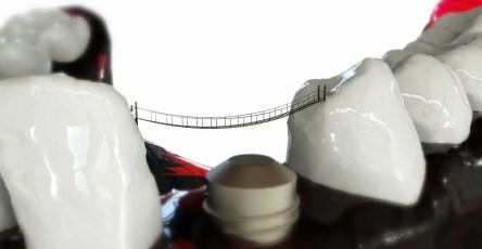 Испанские учёные предложили метод химической модификации поверхности титановых имплантатов дендримерами.