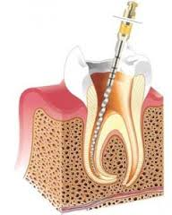 ząb-leczenie kanałowe