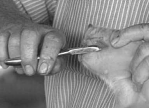 Figure 4. Clipping the needle teeth.