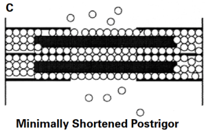 Figure C depicts the reduction in space available for water in the myofibril that occurs in postrigor muscle.  Because numerous permanent rigor bonds have formed between the thick and thin filaments, the lateral space within the sarcomeres and thus within the myofibril has decreased.