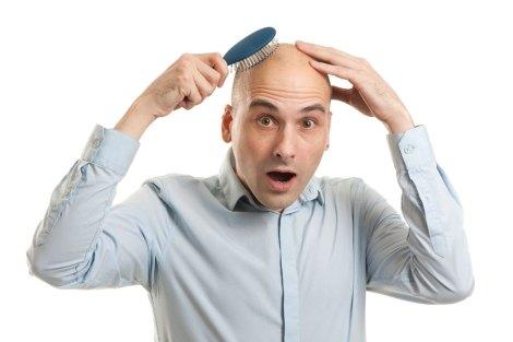 alopecia-hombres