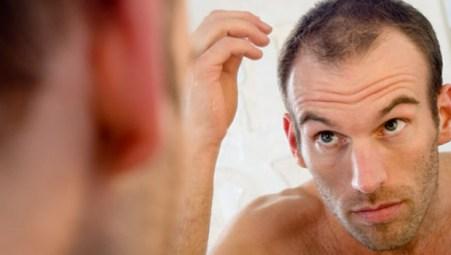 como-evitar-perder-el-pelo