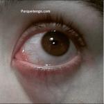 Por Qué Tengo Una Parte Del Ojo Rojo?