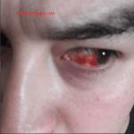 Porque Tengo Sangre En El Ojo Y Como Se Quita