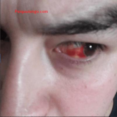 Sangre En El Ojo Y Como Se Quita