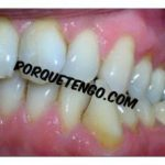 Porque Tengo Sarro Dental | Síntomas y Tratamiento