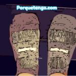 Porque Tengo Fascitis Plantar | Causas Síntomas y Tratamiento