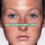 Porque Tengo Manchas En La Cara Blancas – Tratamiento para Eliminarlas
