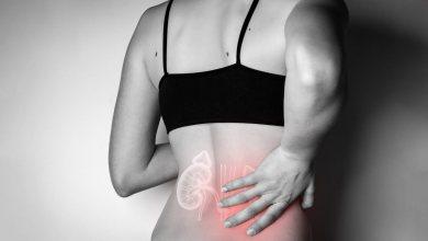Urologista Goiânia - Você já sentiu cólica de rim?