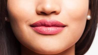 Harmonização Itaberaí - Dê mais curvas para seu sorriso com o Preenchimento labial