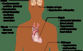 ćiśnienie krwi
